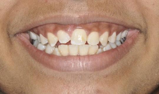 irregular-teeth