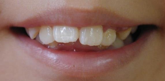 childs-teeth