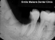 Wisdom-teeth-Second-X-ray-1