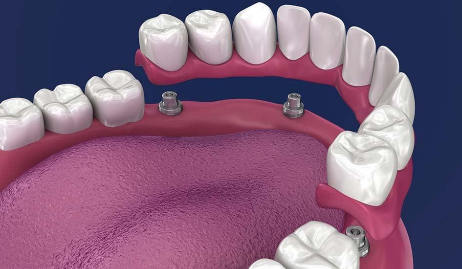 all-on-4-dental-implants-dental-care-oral-health