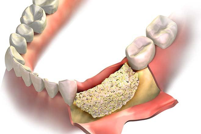 bone-grafting-dental-care-oral-health-check-up