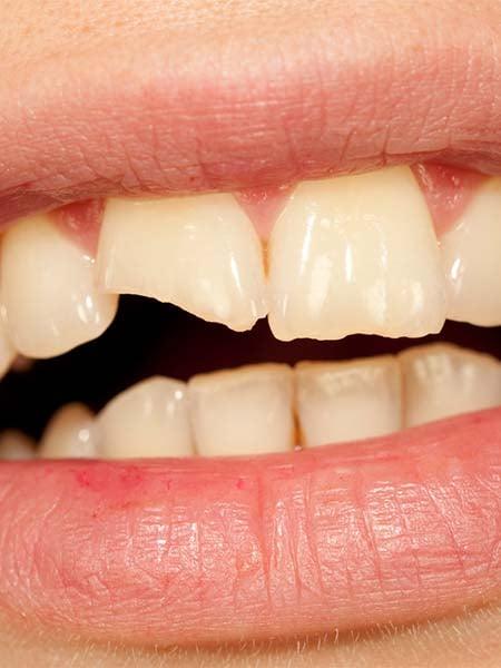 broken-tooth-dental-care