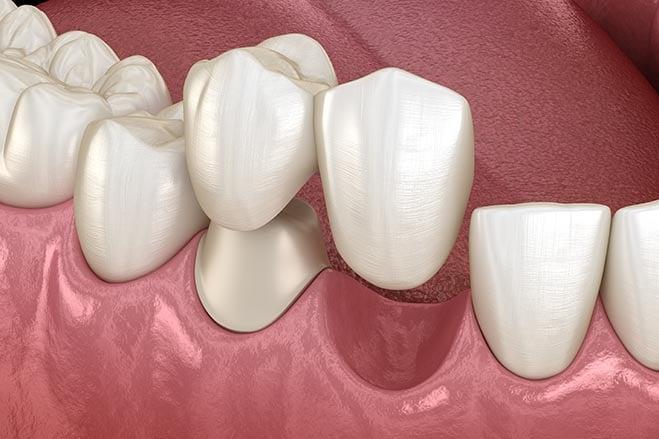 cantilever-bridges-smile-dental-care-oral-health