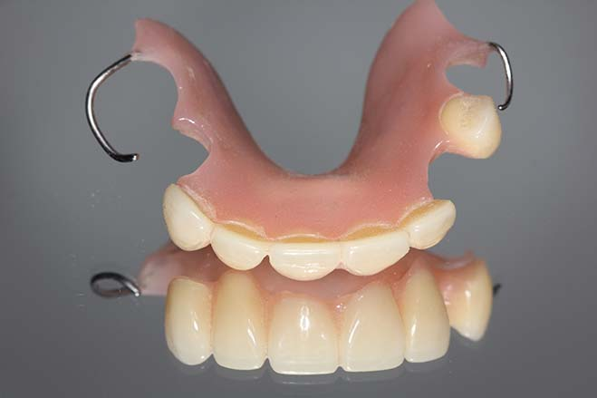 cobalt-chrome-dentures-smile-dental-care-oral-health