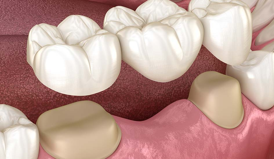 dental-bridges-dental-care-oral-health