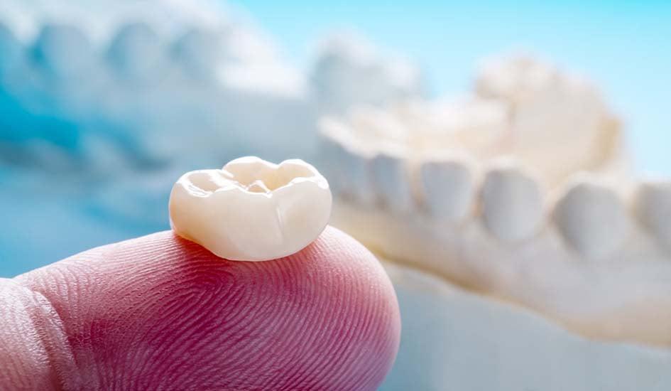 dental-crowns-dental-care-oral-health