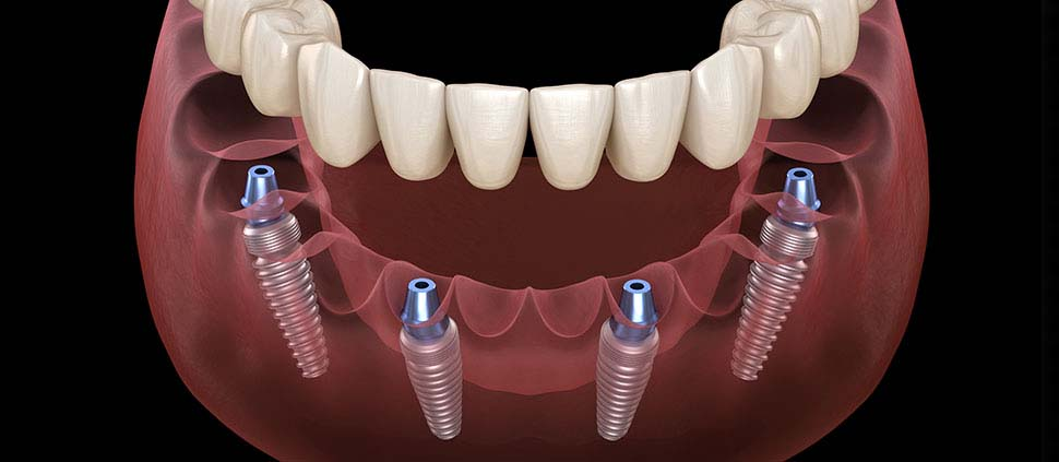 everything-you-should-know-about-all-on-4-dental-implants-dental-care-oral-health