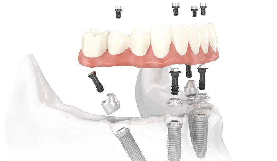 graftless-full-arch-solutions-dental-care-oral-health