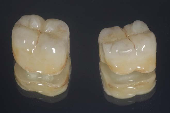 lithium-disilicate-crowns-smile-dental-care-oral-health