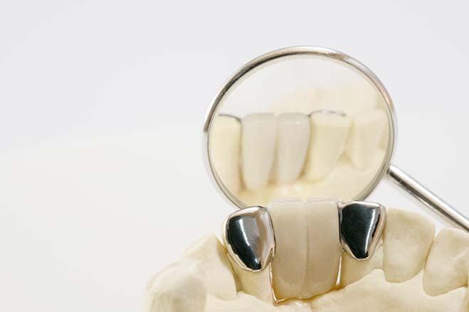 maryland-bridges-or-resin-bonded-bridges-smile-dental-care-oral-health
