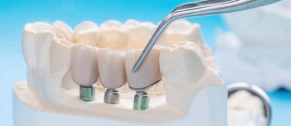multiple-dental-implants-dental-care-oral-health