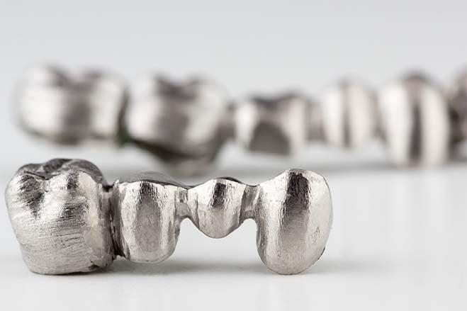 porcelain-fused-with-metal-crowns-smile-dental-care-oral-health