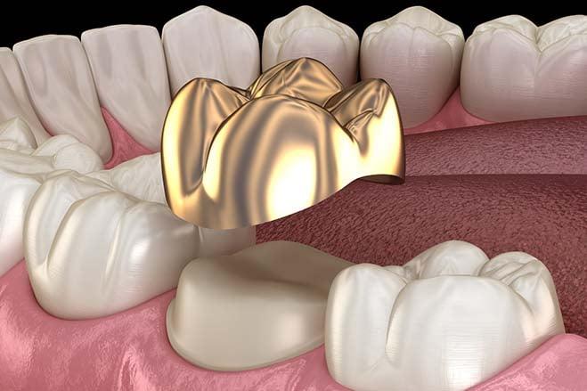 precious-metal-crowns-gold-smile-dental-care-oral-health