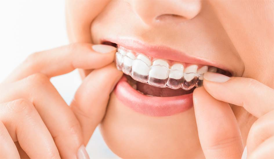 removable-invisalign-introducing-our-latest-expert-nuffield-dental-dentist-korean-caring-teeth