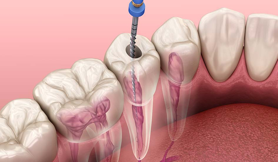 root-canal-treatment-dental-care-oral-health-1