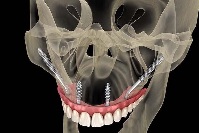 tubero-pterygoid-dental-implants-dental-care-check-up-oral-health