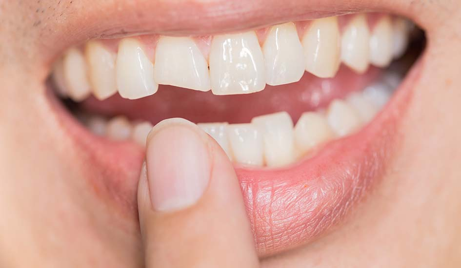 ugly-smile-dental-problem-teeth-injuries-teeth-breaking-male-trauma-nerve-damage-injured-tooth-permanent-teeth-injury-1