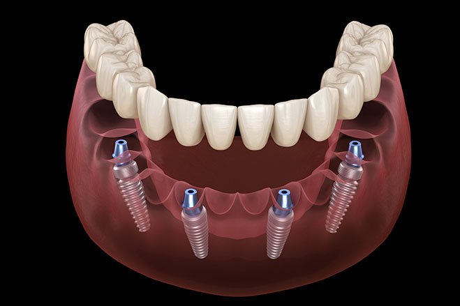 what-are-all-on-4-dental-implants-1