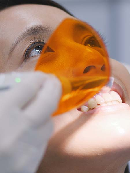 what-is-a-dental-filling-dental-care-oral-health