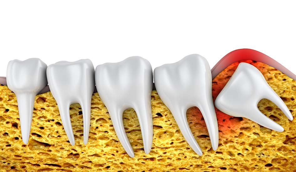 what-is-wisdom-tooth-surgery-dental-care-oral-health