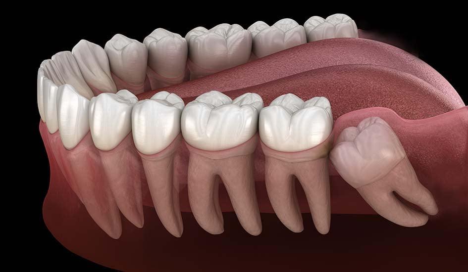 wisdom-tooth-surgery-dental-care-oral-health