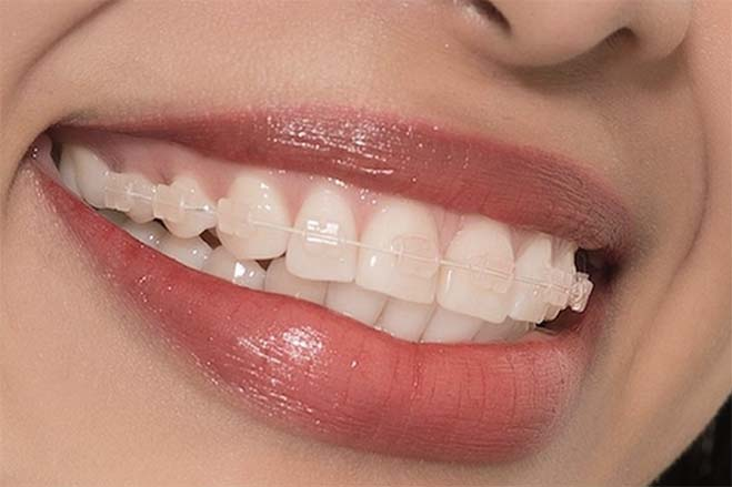 CFAST-dental-care-oral-health-woman-smiling-show-teeth-happy-lips-and confidence