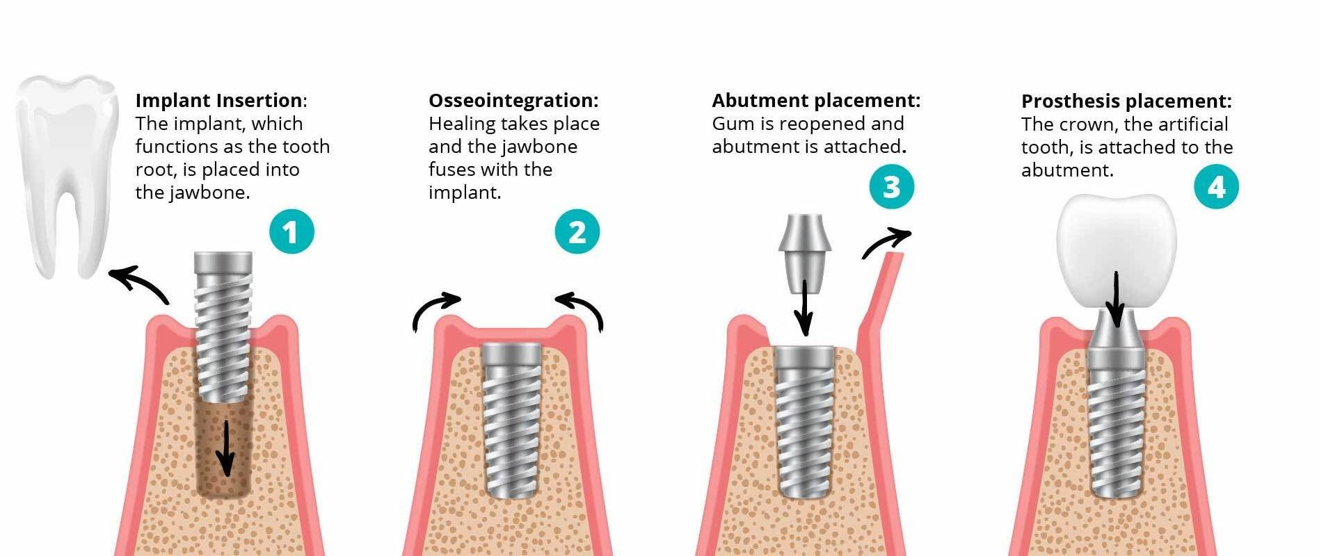 Dental Implants Graphic-02-1