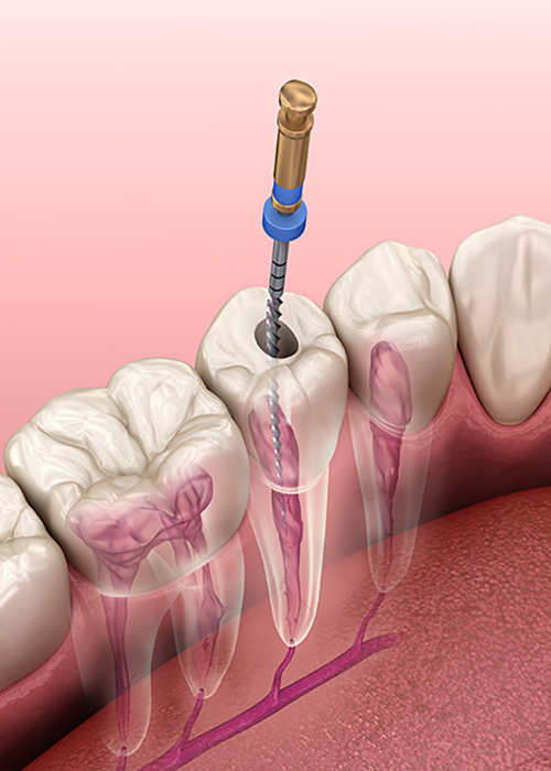 Root Canal Treatment1