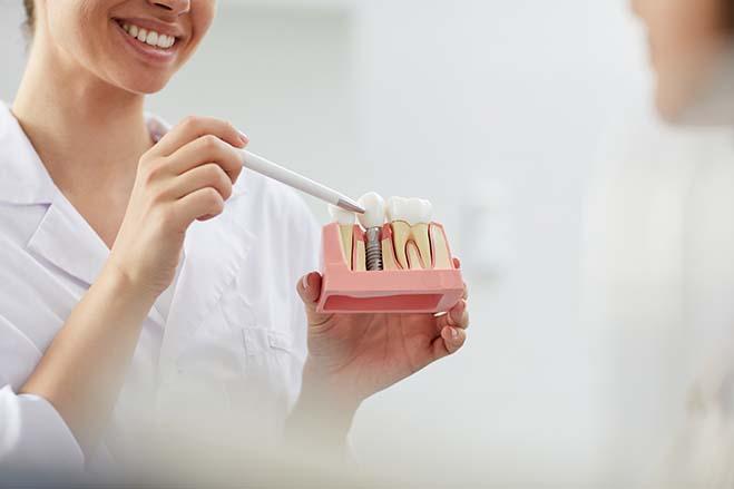 Dental implant by Nuffield Dental