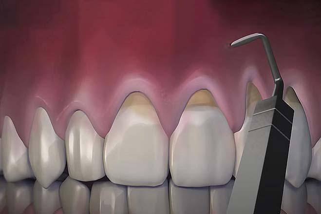 chao-pinhole-gum-rejuvenation-oral-health-dental-care