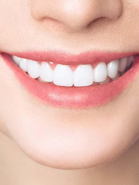composite-bonding-smiling-girl-whitening-teeth-dental-care-oral-health