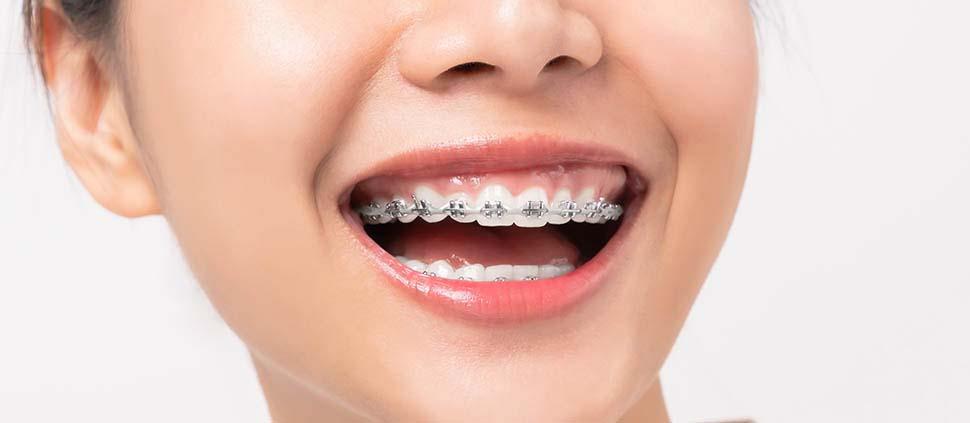 adult wearing braces
