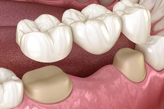 dental-bridges-smile-dental-care-oral-health