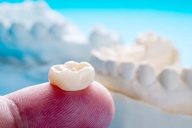dental-crowns-smile-dental-care-oral-health-hand-taking-blue