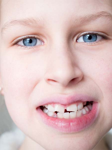 knocked-out-tooth-kid-dental-care
