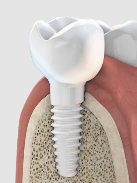 metal-free-dental-implants-dental-care-oral-health