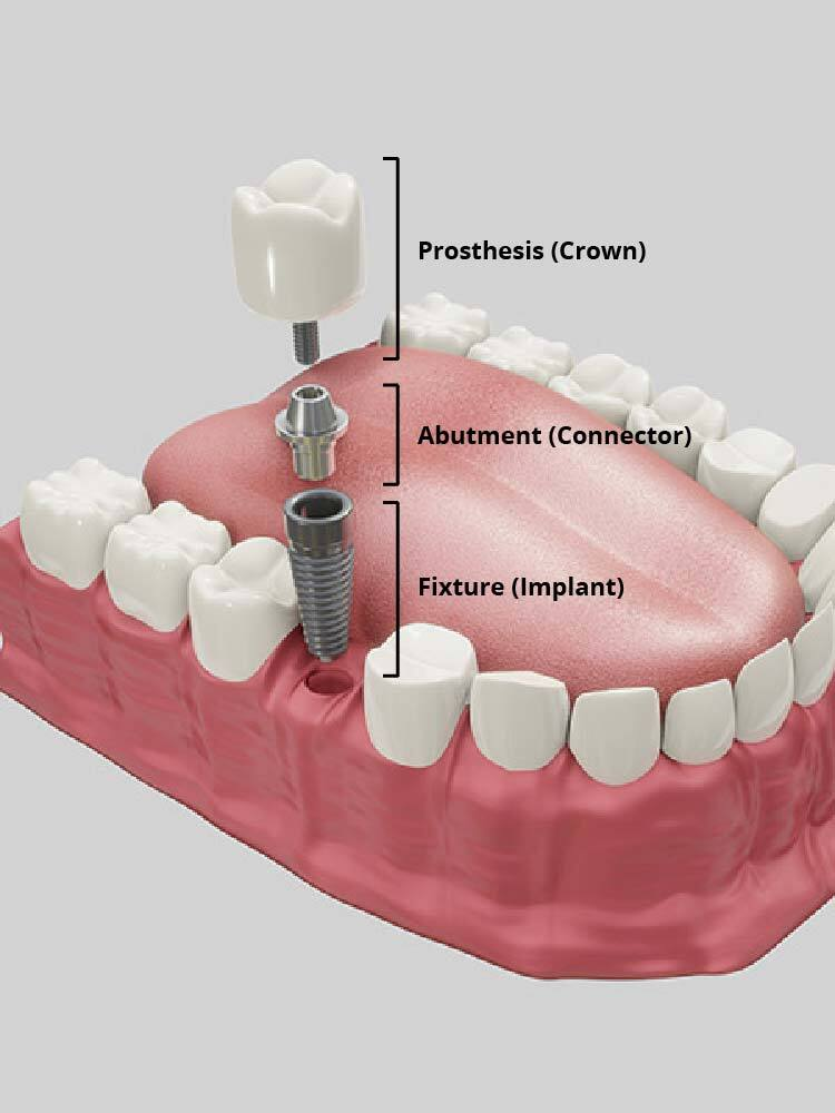 new-what-is-a-dental-Implant-01