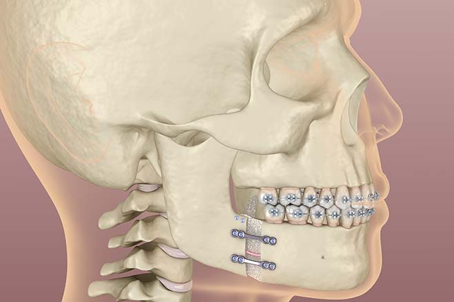 orthognathic-surgery-dental-care-oral-health