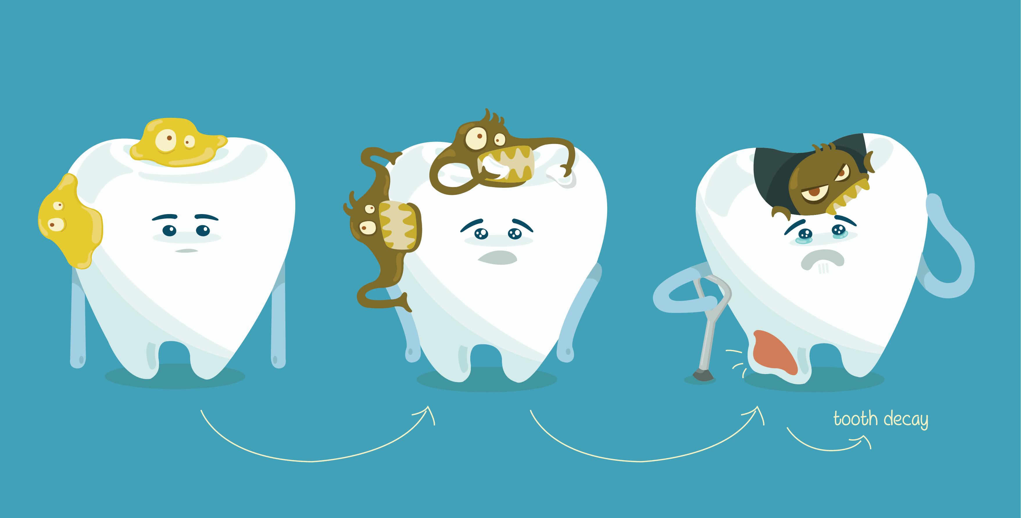 decayed-teeth