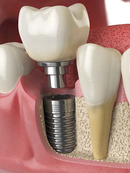 single-tooth-dental-implants-dental-care-oral-health-check-up