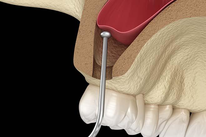 sinus-lift-dental-care-oral-health-check-up