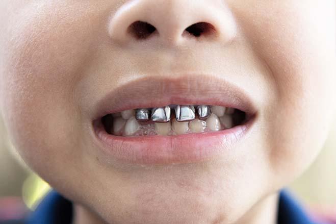 stainless-steel-crowns-kid-smile-dental-care-oral-health