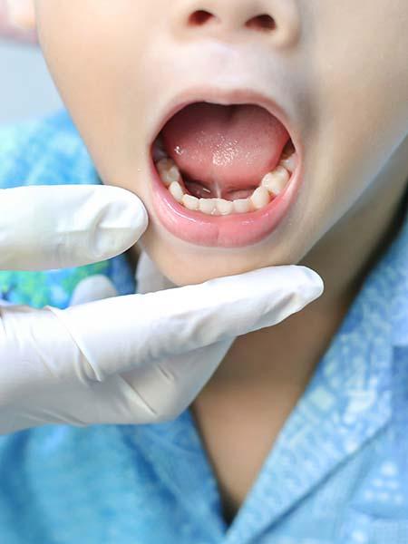tongue-tie release-kid-dental-care-oral-health