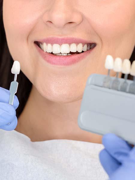 veneers-smile-dental-care-oral-health-asian-girl