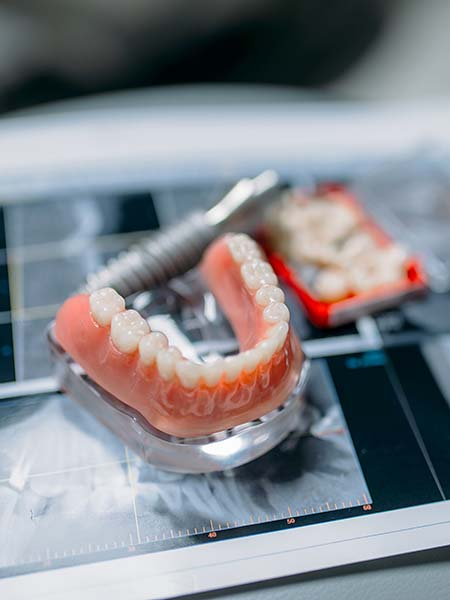 what-are-dentures-dental-care-oral-health