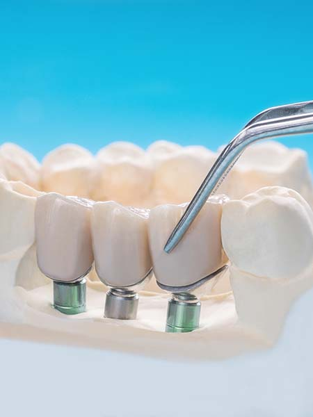 what-are-multi-teeth-dental-implants-oral-health-dental-care