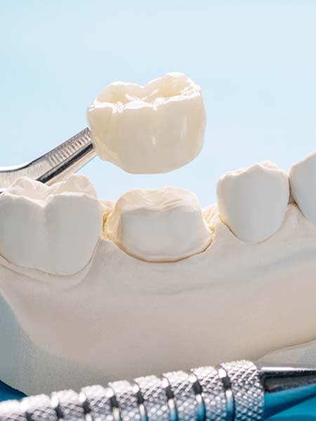 what-is-a-dental-crown-dental-care-oral-health