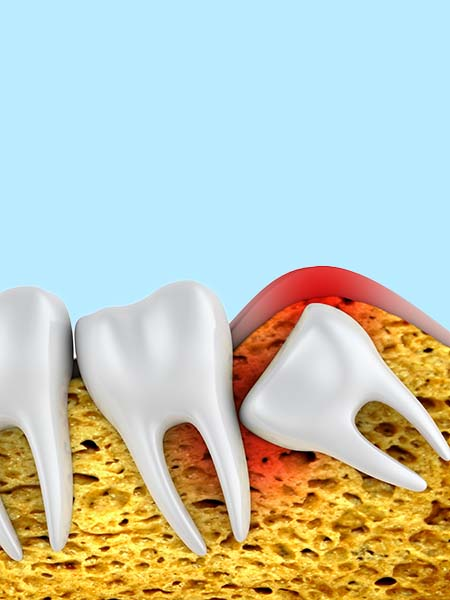 what-is-wisdom-tooth-surgery
