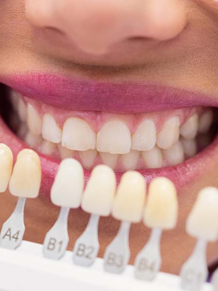 why-may-i-need-a-veneer-smile-dental-care-oral-health
