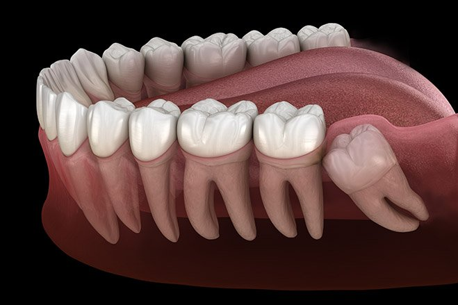 Wisdom Tooth Surgery in Singapore
